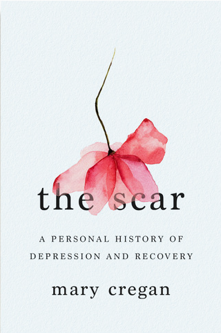 scar, book, ect